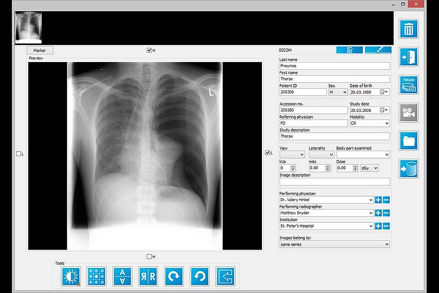 iQ-VIEW/PRO - IMAGE Information Systems - DICOM Viewer
